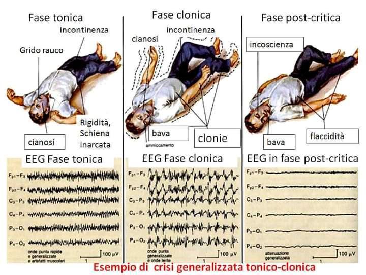 Crisi tonico-clonica generalizzata